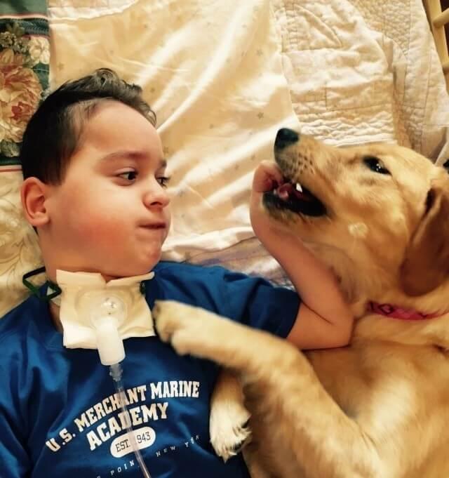 Criança com paralisia sem sorrir
