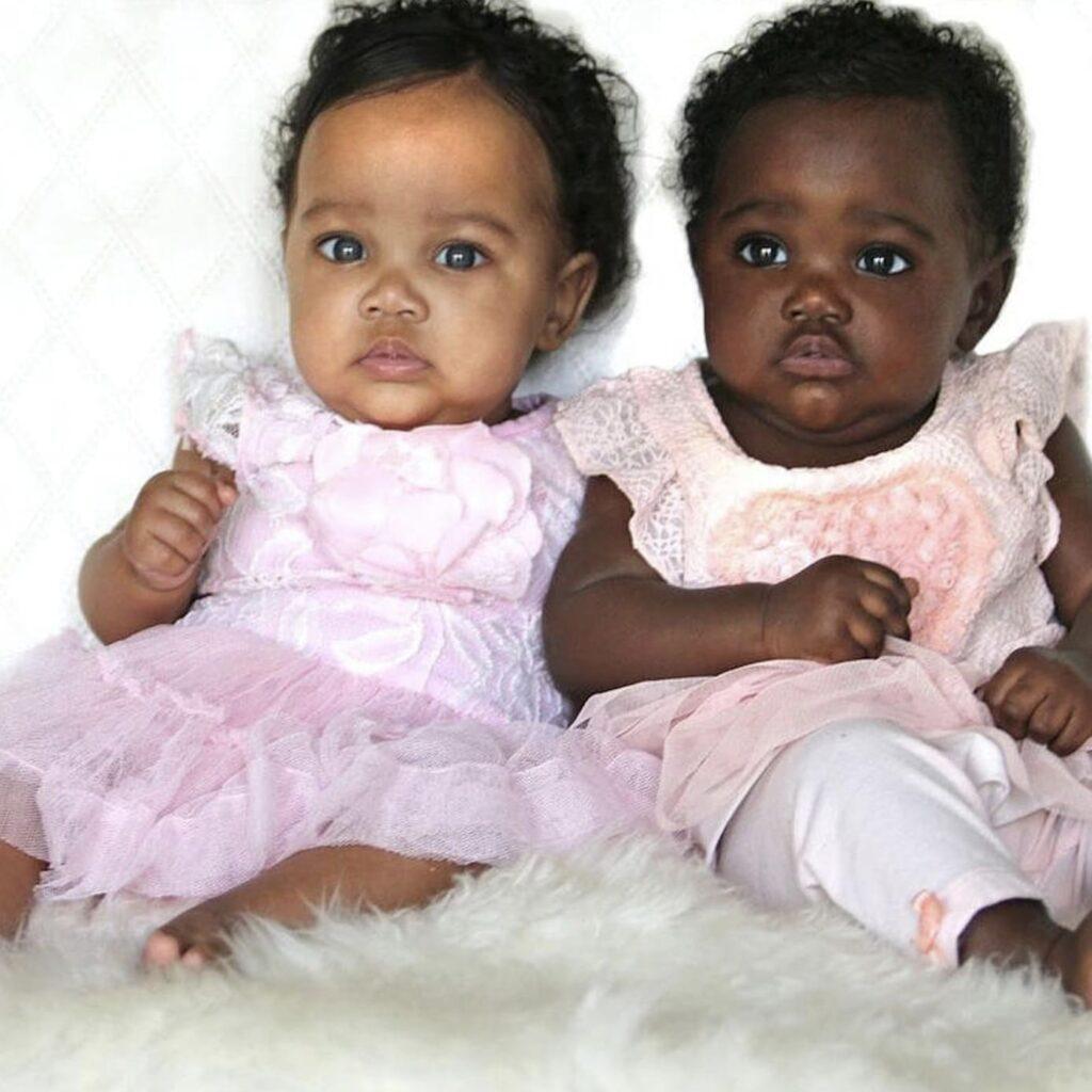 Gémeas nasceram com peles diferentes